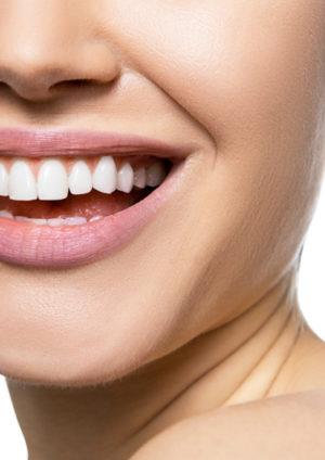 Die 5 besten Tipps für gesunde Zähne